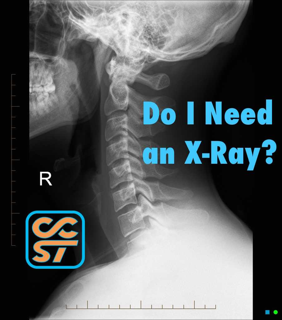 CCST - do I need an x-ray