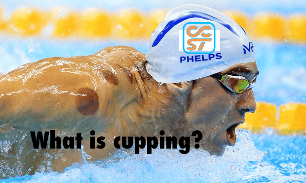 CCST Cupping